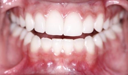 cavity fighting power of saliva